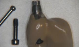 Figure 5: Isus screw retained cantilever bridge