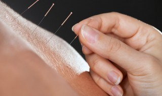 Acupuncture-needles-hand