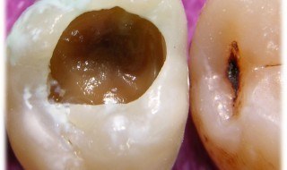 Avi---tooth-1