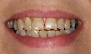 Pre-operative smile