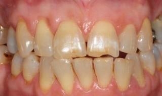 Pre-operative retracted smile