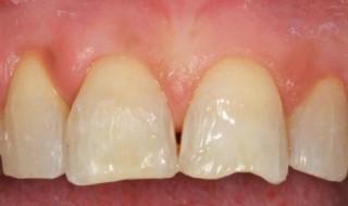 Teeth sandblasted using Cojet
