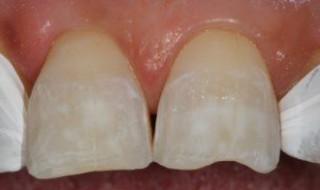 Teeth isolated using PTFE tape