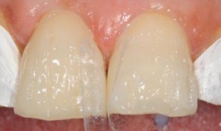 Thin layer of Venus Pearl OLC and then A2 placed for body of veneer, Venus Pearl used for the insical edge