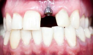 Dentistry 15