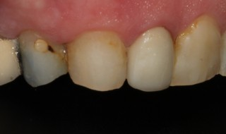 Pre-operative (left intra oral smile with contraster)