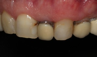 Pre-operative (right intra oral smile with contraster)