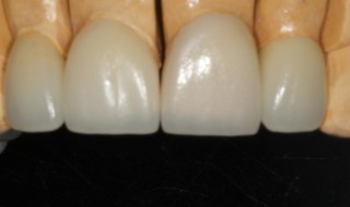 Lithium disilicate restorations on model