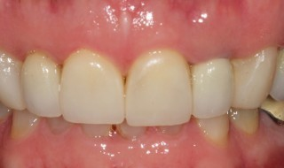 Post-operative (intra oral smile)