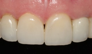 Post-operative (intra oral smile with contraster)