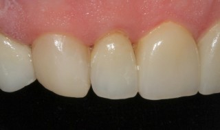 Post-operative (right intra oral smile with contraster)