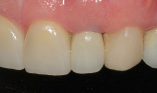 Post-operative (left intra oral smile with contraster)