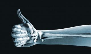 bone regrowth