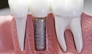 bone graft material