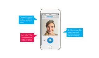 Invisalign-app-new