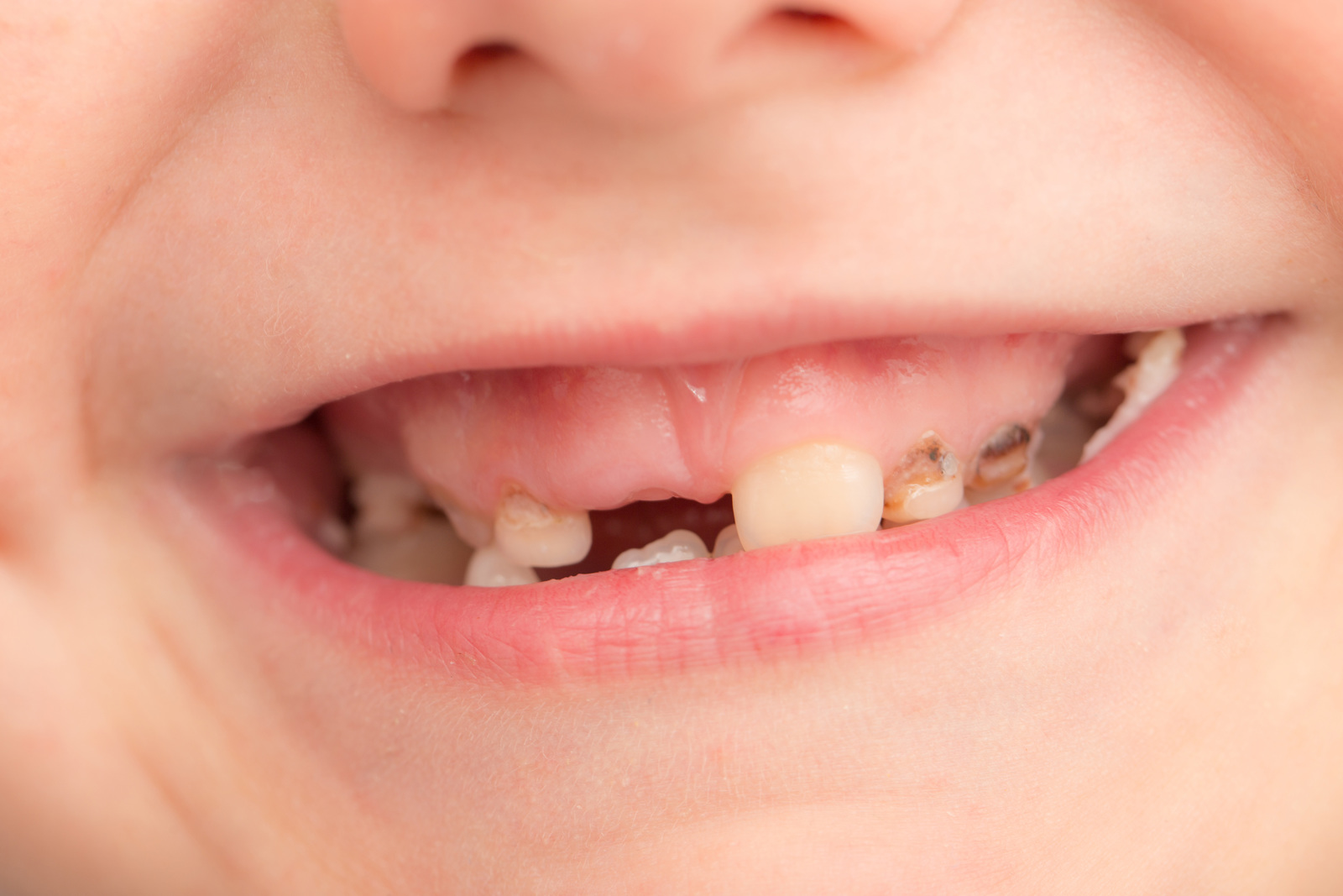 Child tooth decay crisis discussed by MPs and Ministers ...