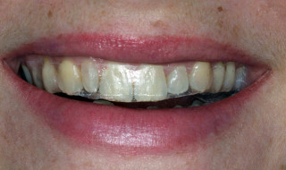 Whitestrips in place