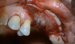 Gaining keratinised tissue
