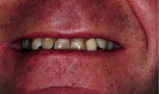 Figure 1: Labial view pre-treatment