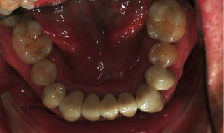 Figure 12: Lower occlusal view following crown placement
