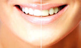 Only registered dental professionals can legally offer tooth whitening treatment using hydrogen peroxide above 0.1%