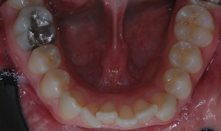 Figure 2: Lower arch before treatment