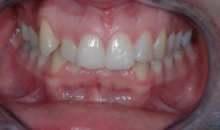 Figure 3: Upper-lower occlusion pre-treatment