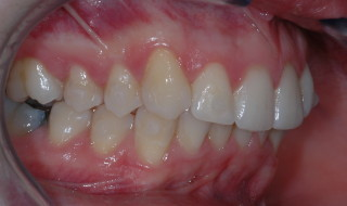 Figure 9: Right buccal occlusion after alignment