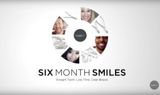 Seven things to know about Six Month Smiles