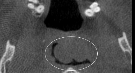 Figure 3: There appears to be an ovoid area of increased soft tissue density superior and posterior to the uvula and the soft palate. In addition, the pharyngeal tonsils appear to be enlarged