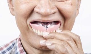 man putting in dentures