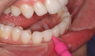 Figure 11: Easy to keep clean with highly polished surfaces and open cervical embrasures to allow interdental brush