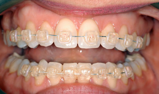 Figure 2: The teeth were correctly aligned in eight weeks
