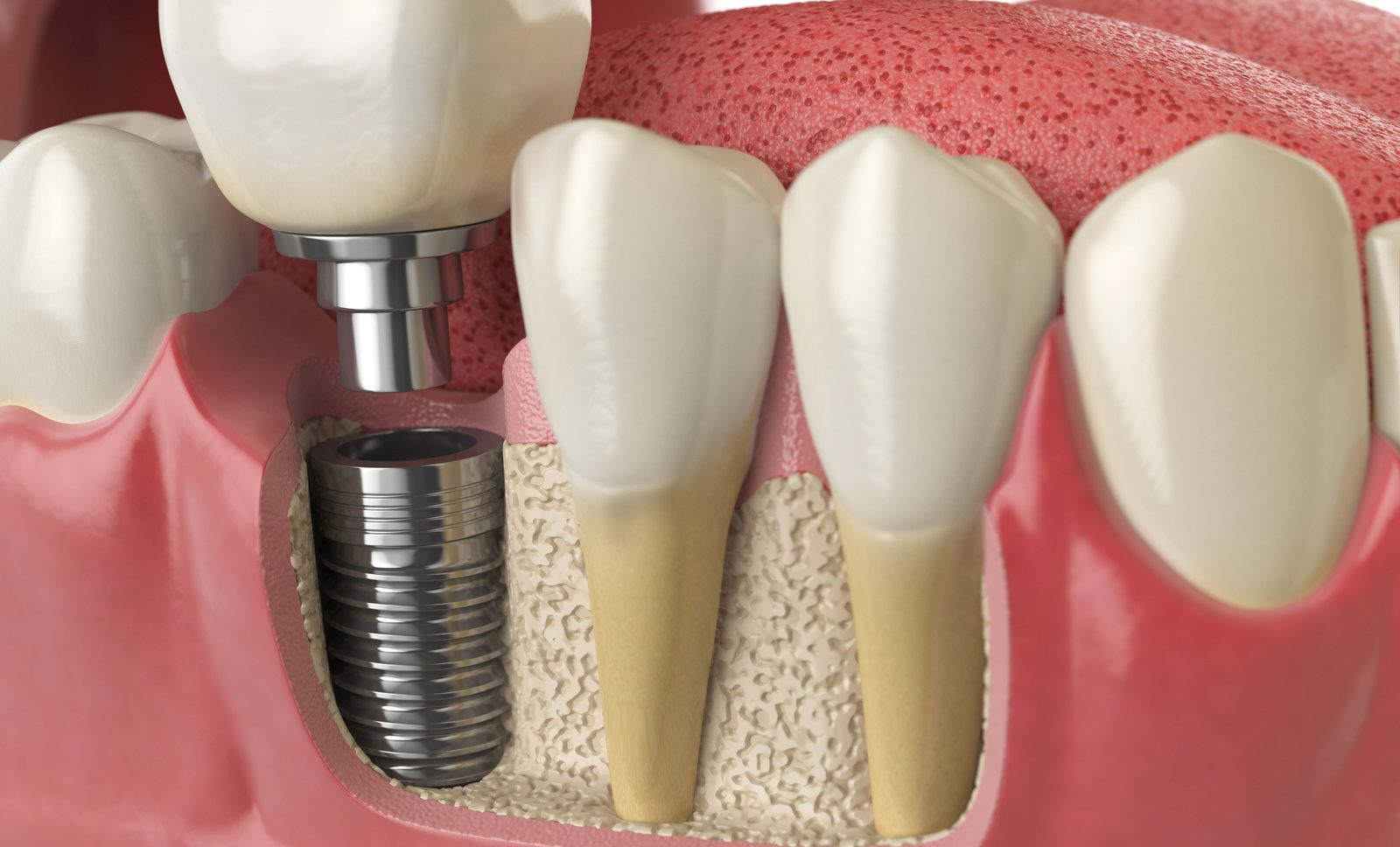 Techniques And Treatment For Your First Dental Implant Procedure Dentistry Co Uk