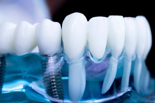 Dental implant showing dental implant training is coming to Portsmouth