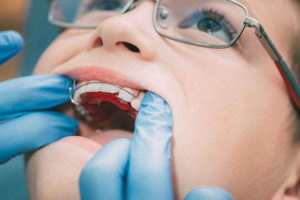 Tendering process for NHS orthodontics is creating a 'race to the bottom', BDA claims