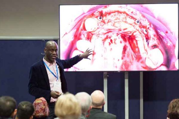 The Implant Dentistry Show is coming to London this February