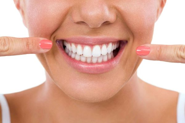 Six Month Smiles answer five questions about aligners