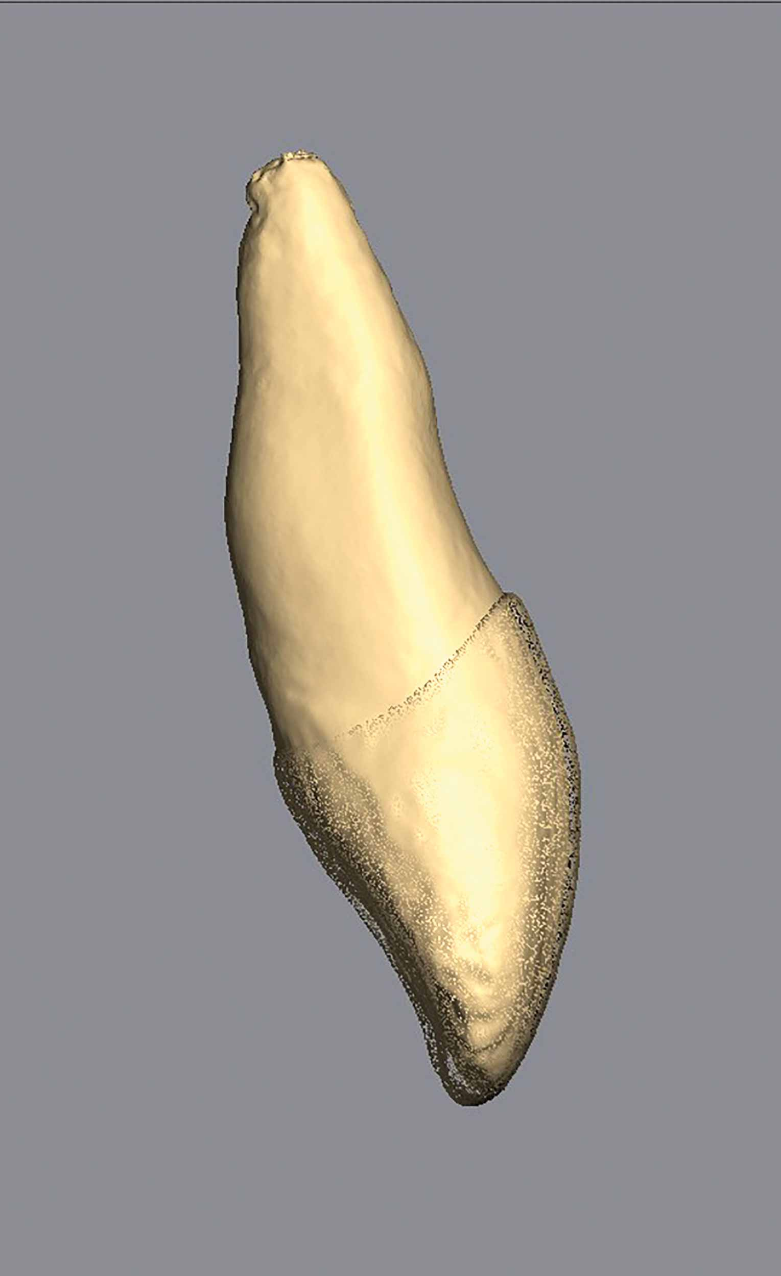 Another real extracted tooth modelled for Vitapan