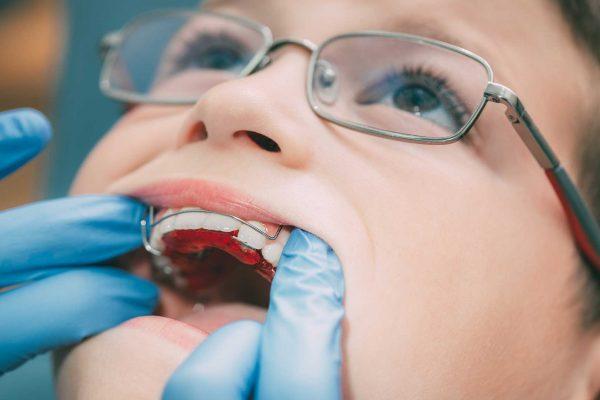 orthodontic contract