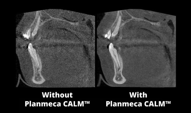 results using Planmeca CALM