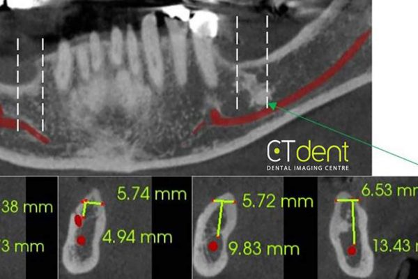 CT Dent scan showing cross-sections through selected areas of the mandible