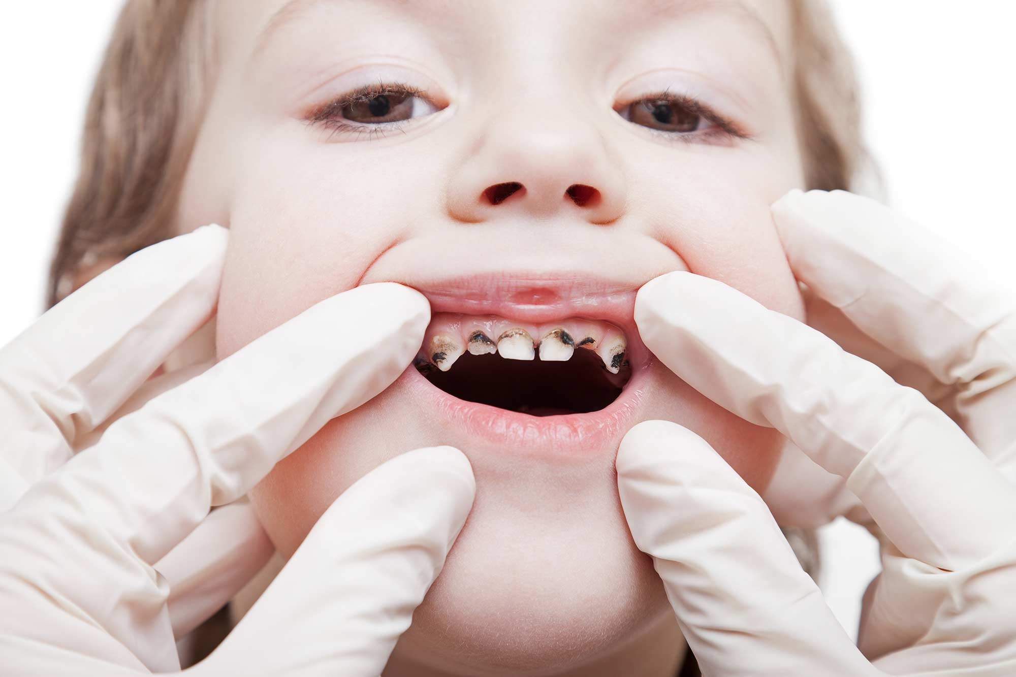 One in four five year olds experience tooth decay, according to new PHE data