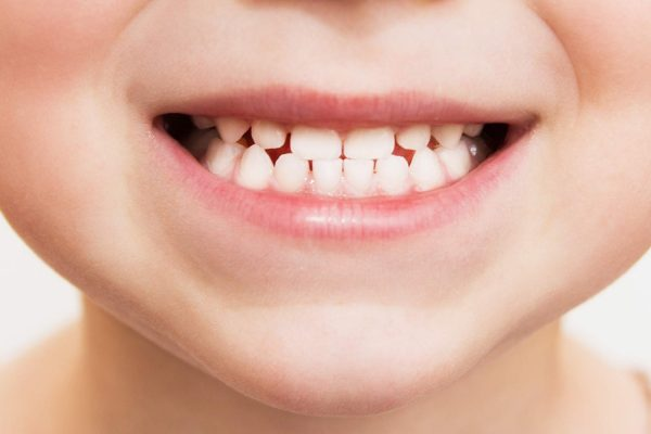 Almost one in eight children have woken up from a bad dream about their oral health, it has been revealed