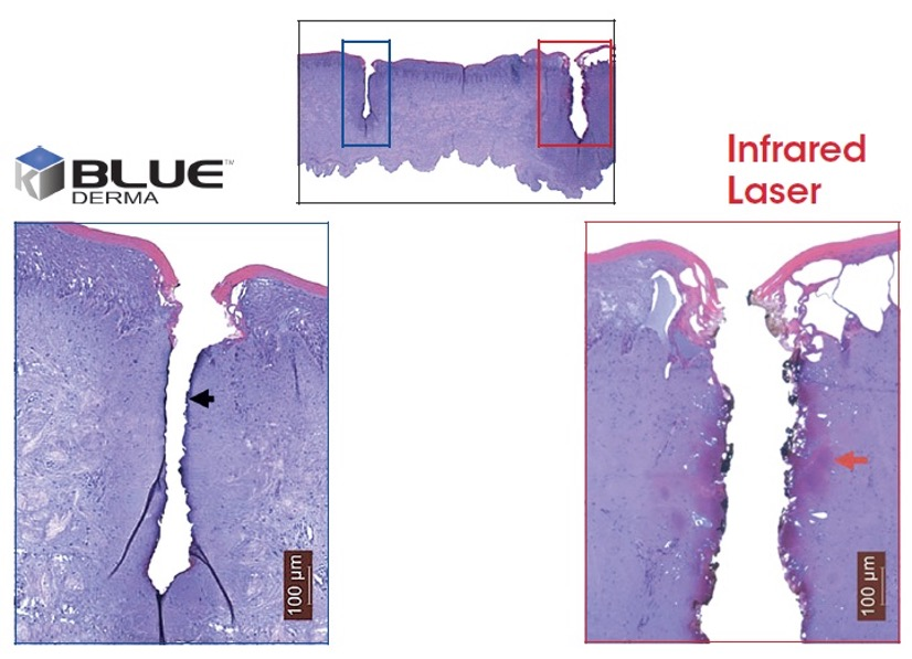 K-Laser Blue Dental healing properties