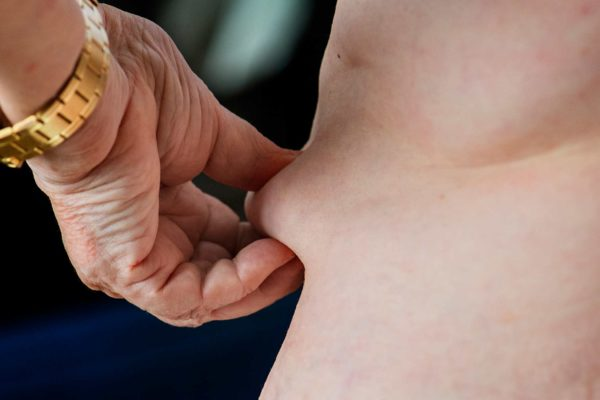 Prime Minister Boris Johnson has announced a number of measures to tackle obesity as part of a national crackdown