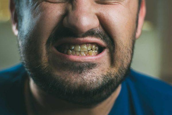 Ben Atkins highlights the oral health gap