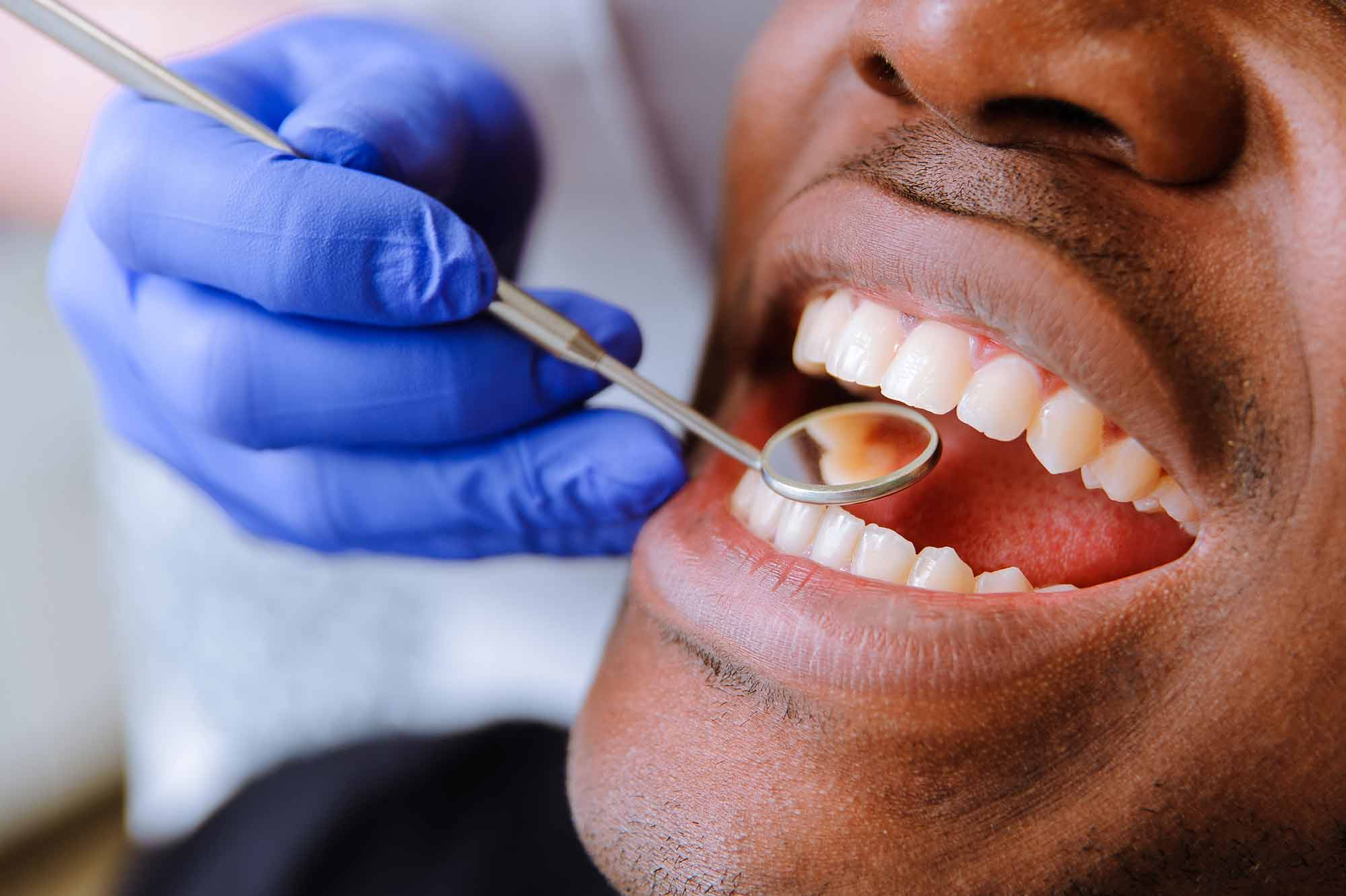 Fewer patients are receiving treatment from NHS dental practices, according to newly-released statistics