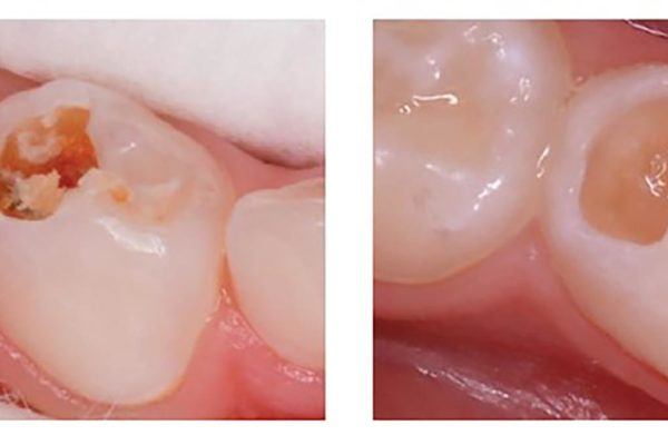 Atraumatic Restorative Treatment can be preferable in order to avoid the spread of virus particles (aerosol generation)