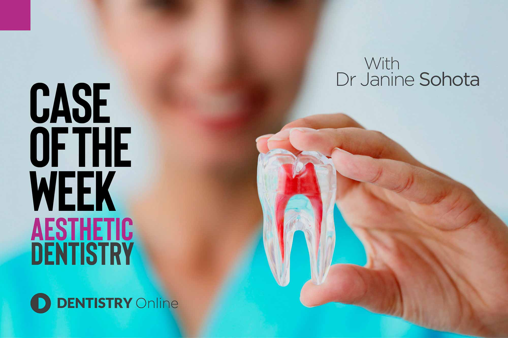 Janine Sohota and her case of the week on central incisors
